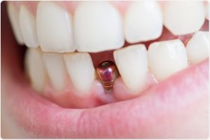 Crooked Teeth? How We Can Help You Invisalign