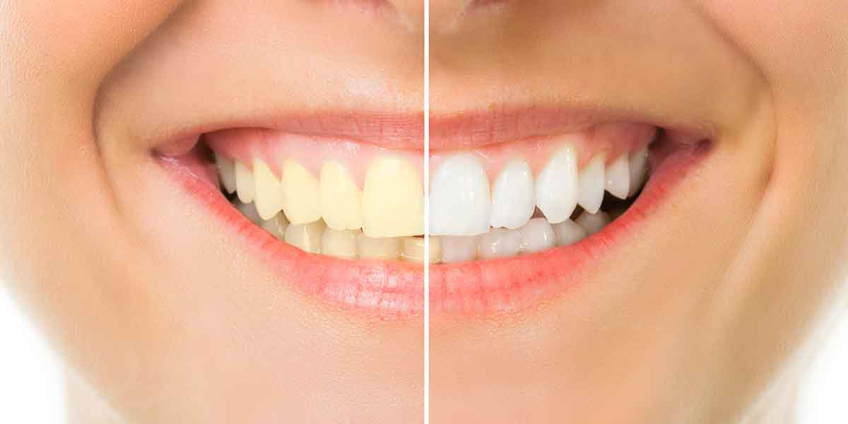 Cosmetic Dentistry Brooklyn NY